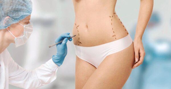 Операції на тілі